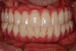 Плановая гигиена через 6 месяцев после имплантации зубов, фото до