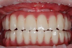 Профессиональная гигиена через год после тотального восстановления зубов на обеих челюстях, фото до