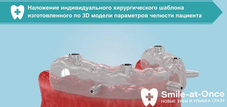 Видео о протезировании зубов All-on-4