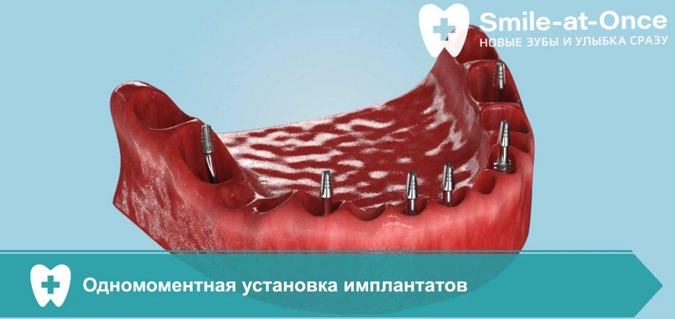 Видео об имплантации All-on-6 при атрофии кости
