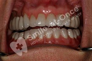 Установка зубных протезов и виниров