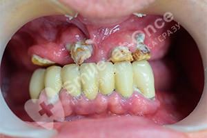 Протезирование зубов методом All on 6