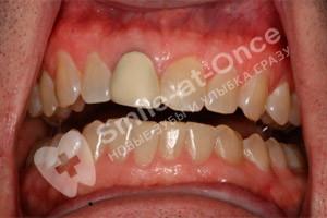 Восстановление зубов коронками и винирами