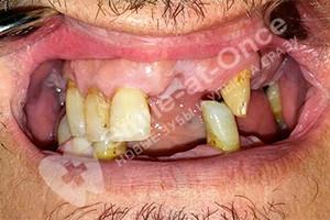 Установка съемных зубных протезов