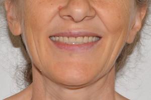 Съемные протезы на обе челюсти, фото до