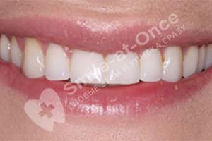 Улучшение вида зубов винирами
