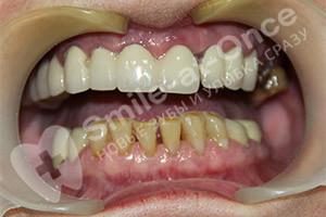 Восстановление зубов верхней челюсти имплантацией