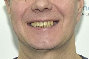 Концевой дефект верхней и имплантация нижней челюсти