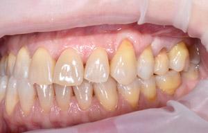 Лечение пародонтита и пластика десны, фото до