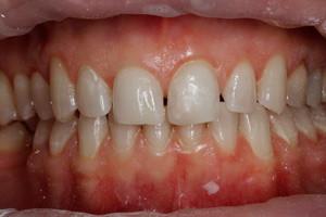 Художественная реставрация переднего зуба, фото до