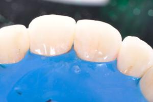 Лечение кариеса передних зубов, фото до