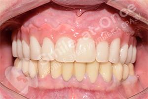 Имплантация на верхней челюсти базальными имплантами