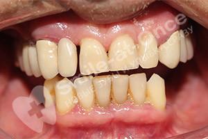 Концевые дефекты нижней челюсти