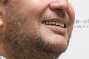 BASAL COMPLEX FULL на обе челюсти. Улыбаемся по новому - до