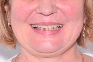 Все-на-4 с адаптационным протезом для нижней челюсти - до