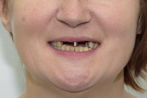 All-on-4 и Basal Complex - рецепт идеальной улыбки - до