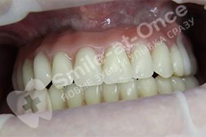 Восстановление зубов методом All-on-six