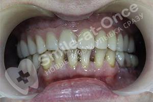 Восстановление верхней челюсти и жевательных нижней