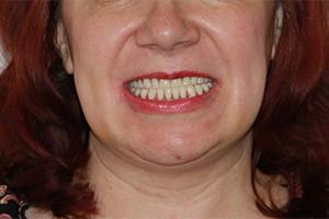 Имплантация после зубных протезов