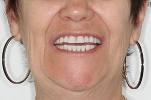 Протезирование All-on-4 для восстановления нижней челюсти