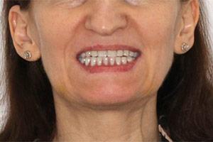 Замена зубных мостов и отсутствие зубов ДО лечения
