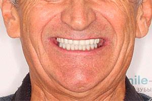 Протезирование нижней челюсти методом All-on-four