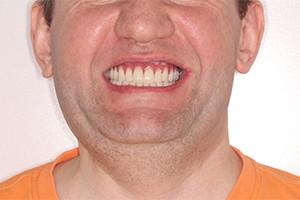 Восстановление зубов однофазной имплантацией