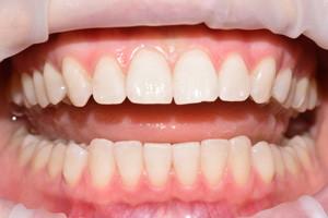 Отбеливание зубов Zoom, фото до