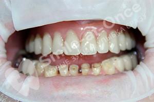 Восстановление зубов верхней челюсти имплантами