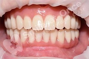 Восстановление зубов методом All-on-4