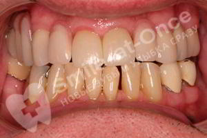 Лечение зубов и установка съемного протеза