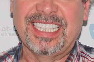 Разрушенные зубы - протезирование All-on-6