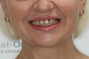 Белоснежная улыбка за 3 дня. Basal Complex на 2 челюсти