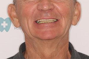 Восстановление зубов после съемного протеза методом All-on-4