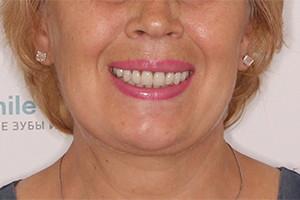 Имплантация всех зубов после мостовидных протезов