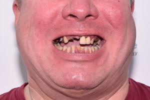 Больные зубы заменили имплантами по протоколу All-on-4