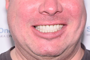 Замена зубных мостов имплантами по протоколу All-on-4