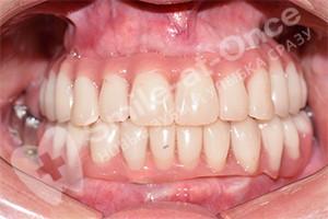 Имплантация после разрушения зубов