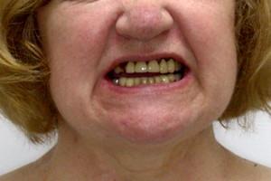 All-on-4 для восстановления верхней челюсти - до