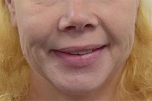 Замена зубных протезов на импланты - до