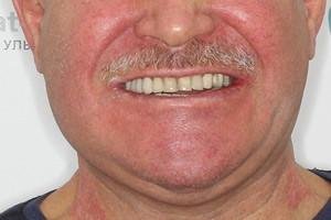 Протезирование нижней челюсти All-on-4 - до