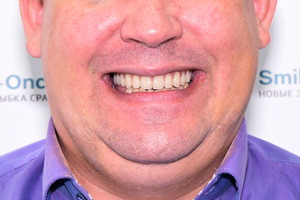 All-on-4 для верхней челюсти с постоянным протезом, фото до