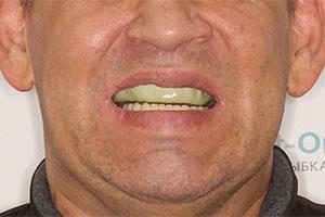 Basal Complex на верхней челюсти