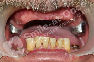 Восстановление после старых зубных протезов