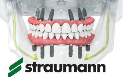 All-on-6 Straumann с адаптационным съемным протезом за 1 день