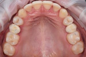Одиночная имплантация после ортодонтического лечения, фото до