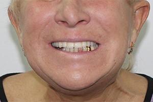 Восстановление зубов нижней челюсти - All-on-6