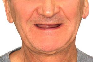 All-on-4 и базальная имплантация. Две методики - одна улыбка - до