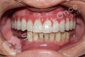 Протезирование All-on-4 верхней челюсти и жевательных нижней