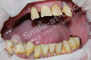 Восстановление двух челюстей имплантацией